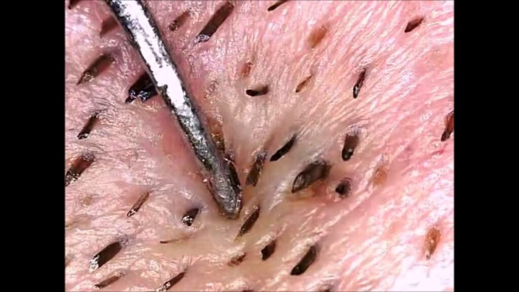 Blackheads, Whiteheads, Pimples & Cysts by Mr Blackhead (Microscope)
